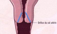 opération enlever uterus