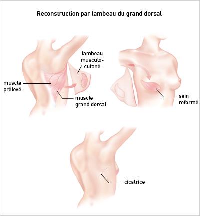 La crise de la hernie du service cervical